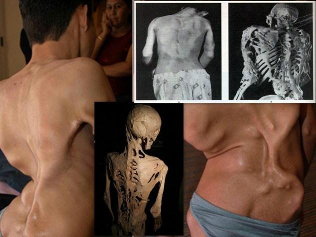 Фибродисплазия оссифицирующая прогрессирующая / ©Flickr