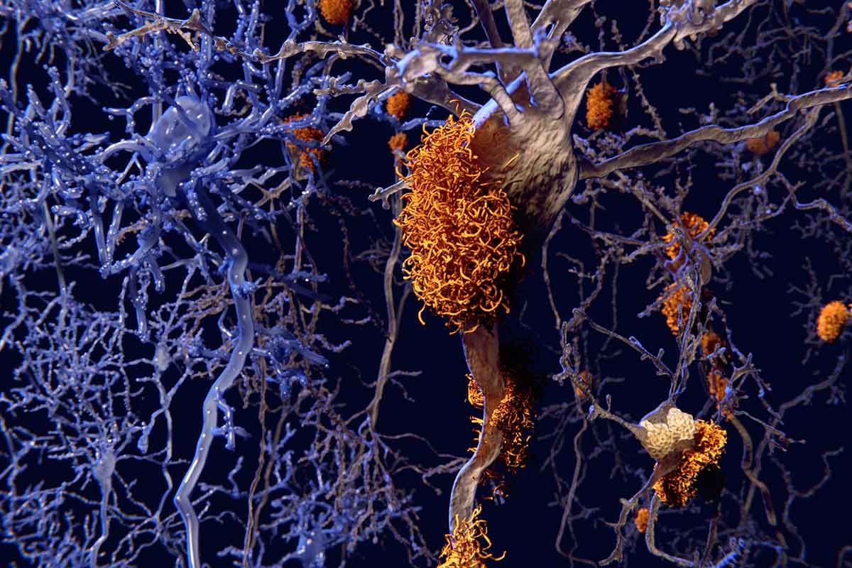 f0117797-brain_nerve_cells_affected_by_alzheimers-spl