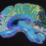 Биомаркер шизофрении обнаружили в волосах